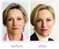 Neck Lift Before And After Reviews Of Cosmetic Treatments
