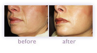 Sculptra, Collagen Stimulating Therapy