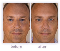 Men's wrinkle treatment before and after