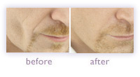 Men's cheek rejuvenation before and after
