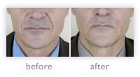 Men's facial wrinkle treatment before and after