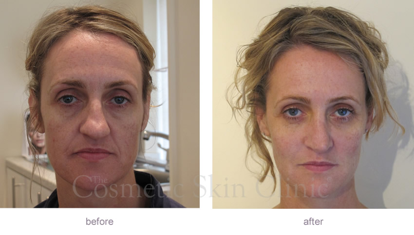 Non Surgical Facelift Before And After Gallery