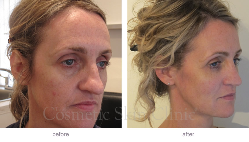 Juv 233 Derm 174 Ultra Before Amp After Gallery