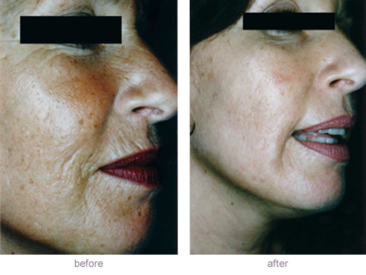 Dermaroller Micro Surgical Needling Before And After Pictures