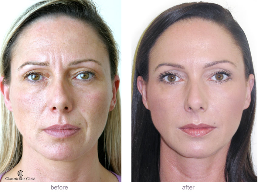 Facial Fillers Before And After 17