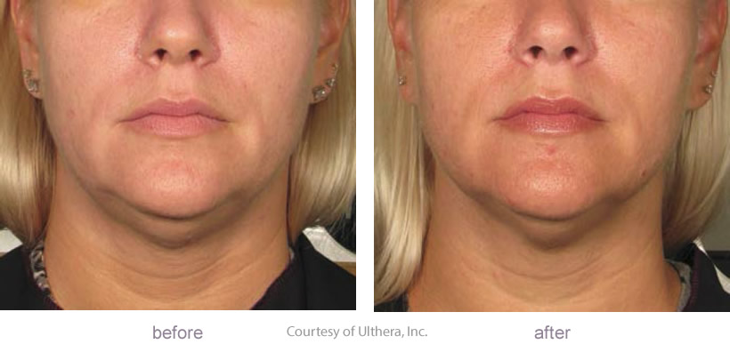 Ultherapy Treatment Before Amp After