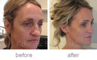 Mandy profile Juvederm before and after