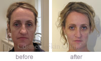 Mandy Juvederm before & after