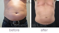 CoolSculpting gets rid of stomach fat before and after