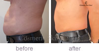 CoolSculpting abdomen profile before and after
