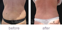 CoolSculpting female treatment