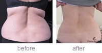 Kate Battrick CoolSculpting abdomen & flanks before and after
