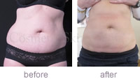 CoolSculpting abdomen and flanks before and after