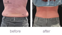 CoolSculpting rapid fat loss for women before and after