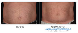 Non-surgical fat reduction before and after