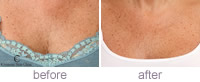 Decolletage treatment
