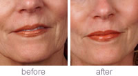 Collagen Stimulating Therapy before and after