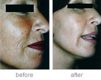 Dermaroller Aged skin with wrinkles and pigmentation  before and after