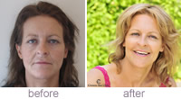 Cheek enhancement - Joanne Owen using Juvéderm