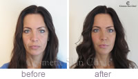 Juvederm Non-surgical face lift