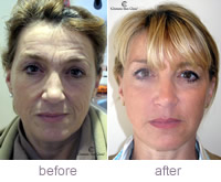 Linda Blay: Juvederm Voluma Treatment