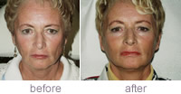 Liquid face lift before & after