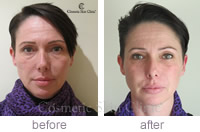 Restylane azzalure lower face lift before & after