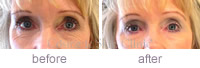 Pelleve eyes treatment Before & after