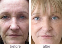 Cheek enhancement - Angela Brown