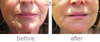 Restylane Skinbooster before & after