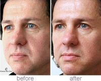 Phil - Restylane® wrinkle treatment