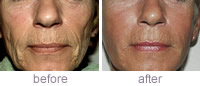 Sculptra treatment before and after