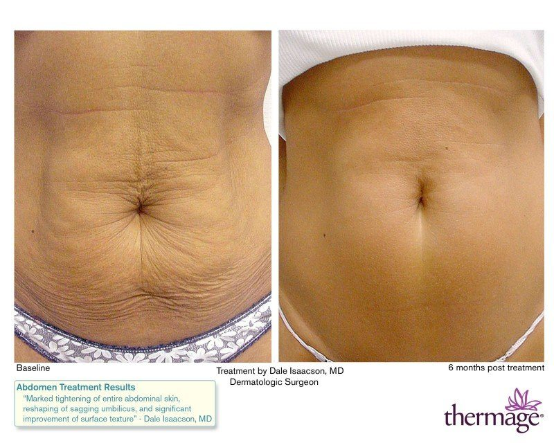 Weight Loss Stretch Marks Stomach - Weight Loss & Diet Plans