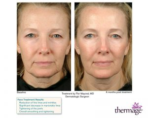 Thermage - Mid/Lower face and neck treatment