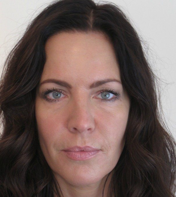 A lady's face following Botox treatment and dermal fillers, including tear trough, nose-to-mouth lines and smile lines