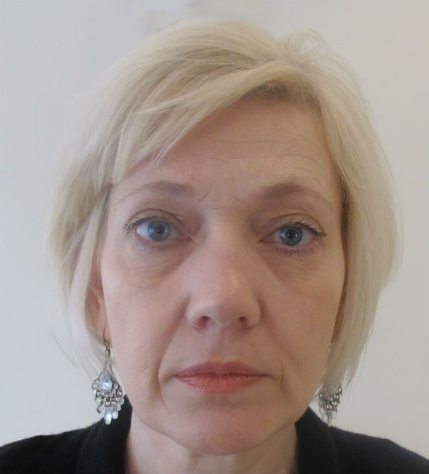 Before image of non-surgical facelift using Juvéderm dermal fillers