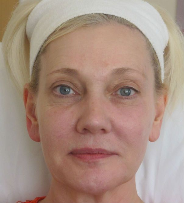 A close up of a lady's face following Juvederm Vycross treatment and muscle relaxant to the forehead and crow's feet