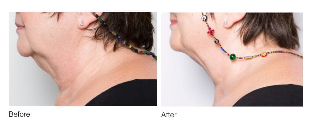 CoolSculpting under chin before and after