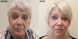 Carole Spencer Anti Ageing Treatment Before After