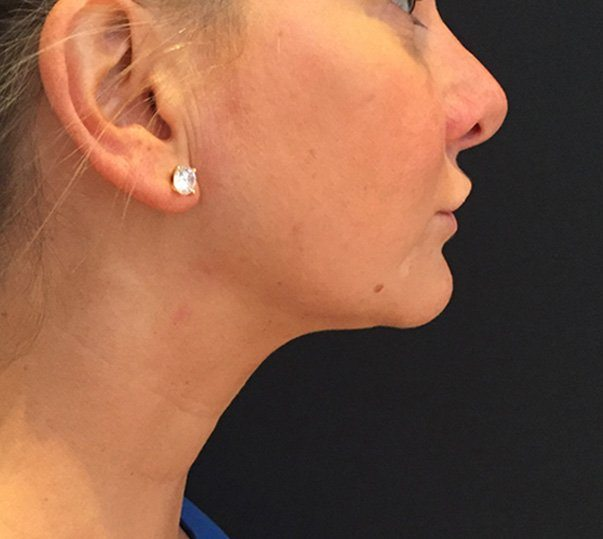 A female patient after CoolMini treatment to her double chin