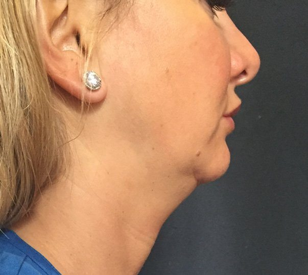 A female patient before CoolMini treatment to her double chin