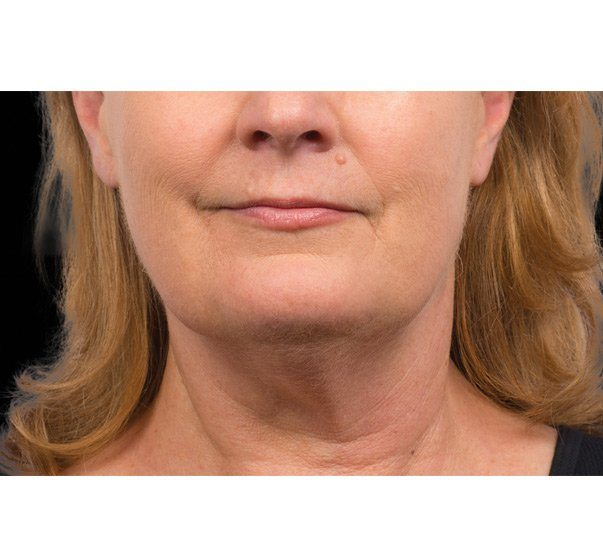 A lady after having CoolSculpting treatment to the submental (double chin)