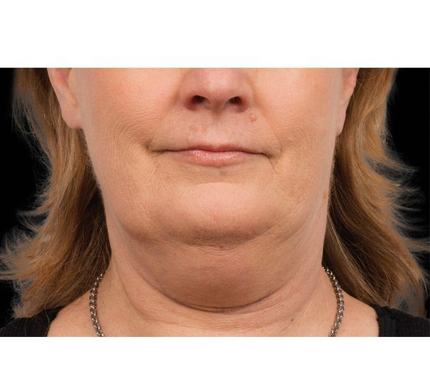 Before CoolSculpting treatment to the submental (double chin)