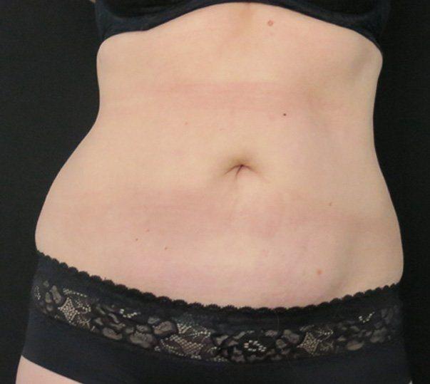 coolsculpting abdomen after