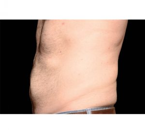 CoolSculpting-After-Abs