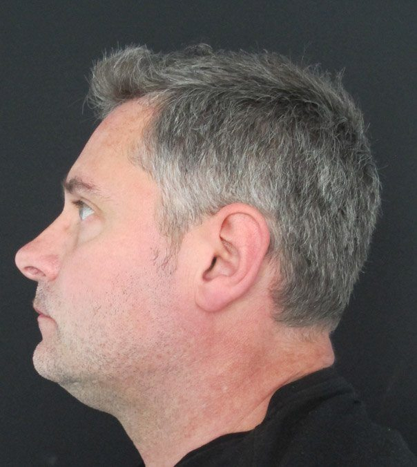 A gentleman following CoolSculpting treatment for a double chin