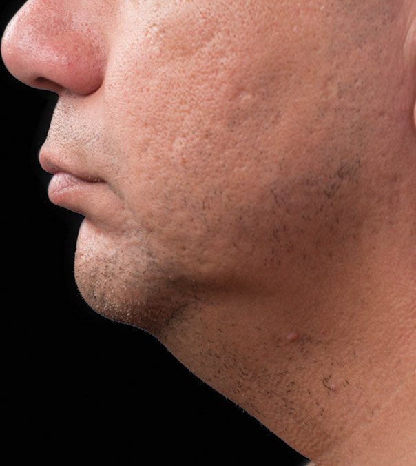 After CoolSculpting treatment to the submental (double chin)