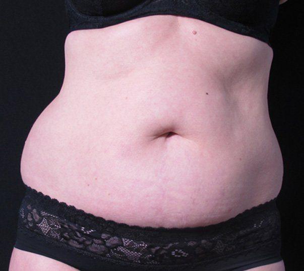 coolsculpting abdomen before