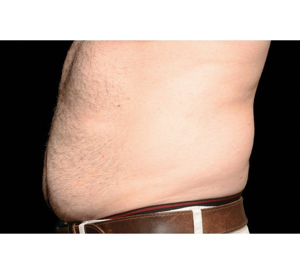 Before CoolSculpting treatment on abdomen by Brian Biesman, MD