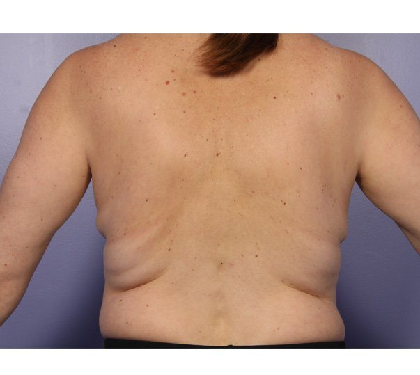 A lady before her CoolSculpting (fat freezing) treatment on her waist